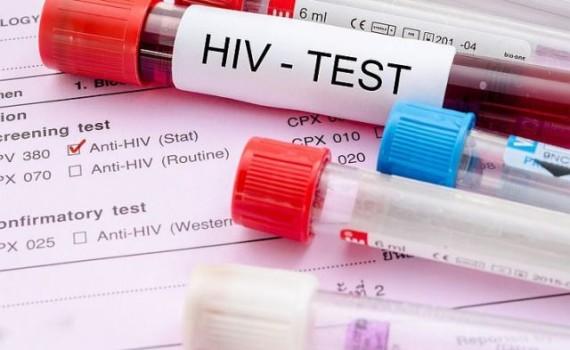 ВИЧ-диссиденты